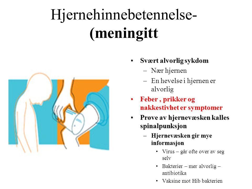 Hjernehinnebetennelse- (meningitt Svært alvorlig sykdomSvært alvorlig sykdom –Nær hjernen –En hevelse i hjernen er alvorlig Feber, prikker og nakkesti