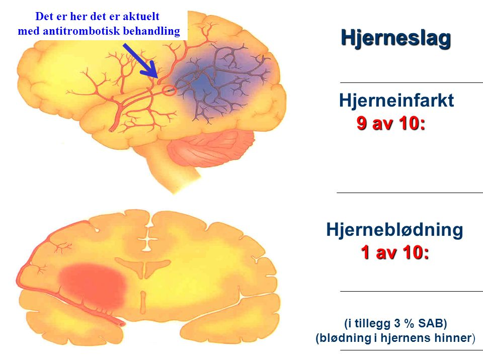 2 Hjerneinfarkt 9 av 10: Hjerneblødning 1 av 10: (i tillegg 3 % SAB) (blødning i hjernens hinner) Hjerneslag Det er her det er aktuelt med antitrombotisk behandling