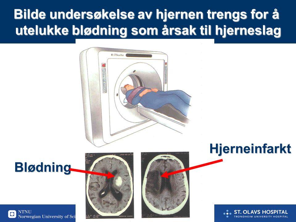 4 Blodpropp fra hjertet ¼ Blodpropp fra store årer utenfor hjernen 1/2 Blodpropp i små årer inne i hjernen 1/4 Det er mange årsaker til hjerneinfarkter