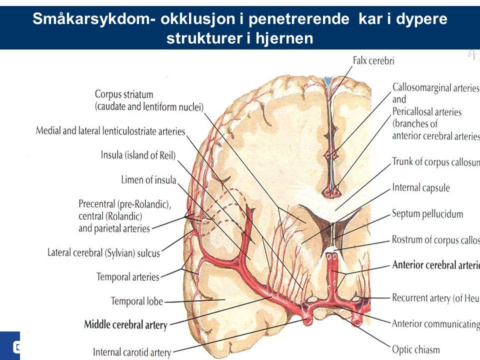6 Småkarsykdom- okklusjon i penetrerende kar i dypere strukturer i hjernen