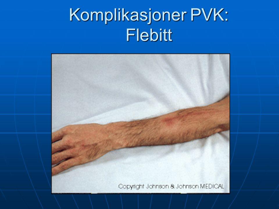 Komplikasjoner PVK: Flebitt