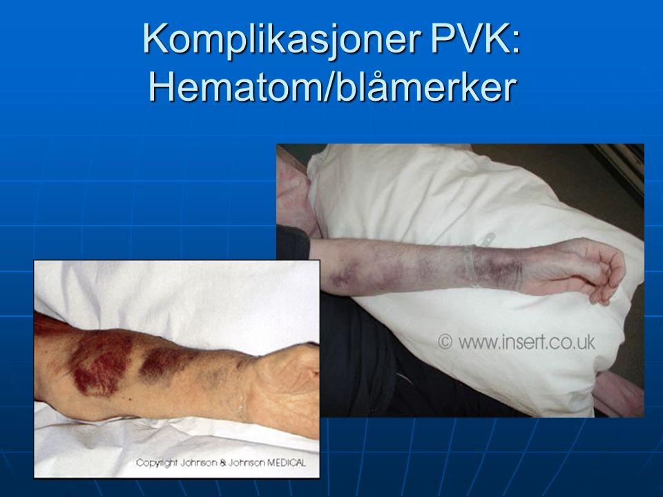 Komplikasjoner PVK: Hematom/blåmerker