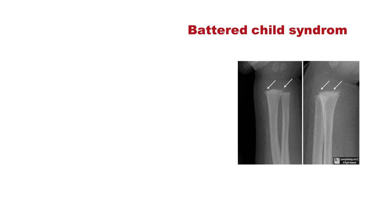 Battered child syndrom