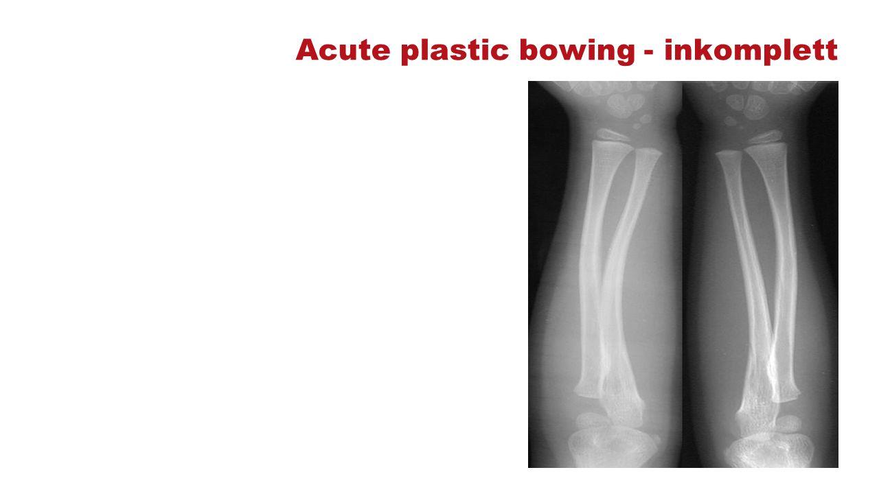 Acute plastic bowing - inkomplett