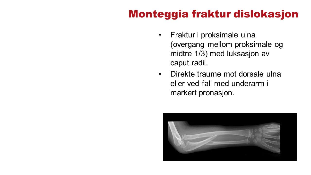 Monteggia fraktur dislokasjon Fraktur i proksimale ulna (overgang mellom proksimale og midtre 1/3) med luksasjon av caput radii. Direkte traume mot do