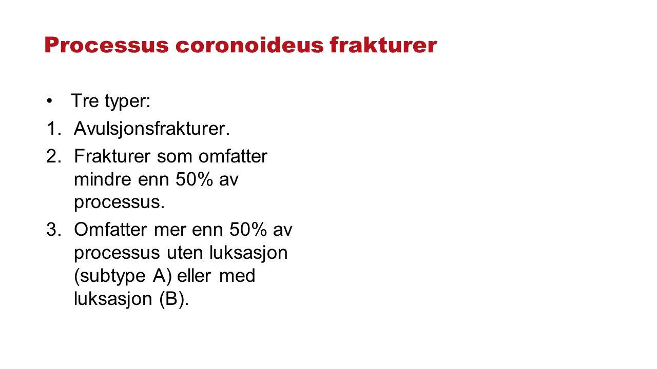 Processus coronoideus frakturer Tre typer: 1.Avulsjonsfrakturer. 2.Frakturer som omfatter mindre enn 50% av processus. 3.Omfatter mer enn 50% av proce