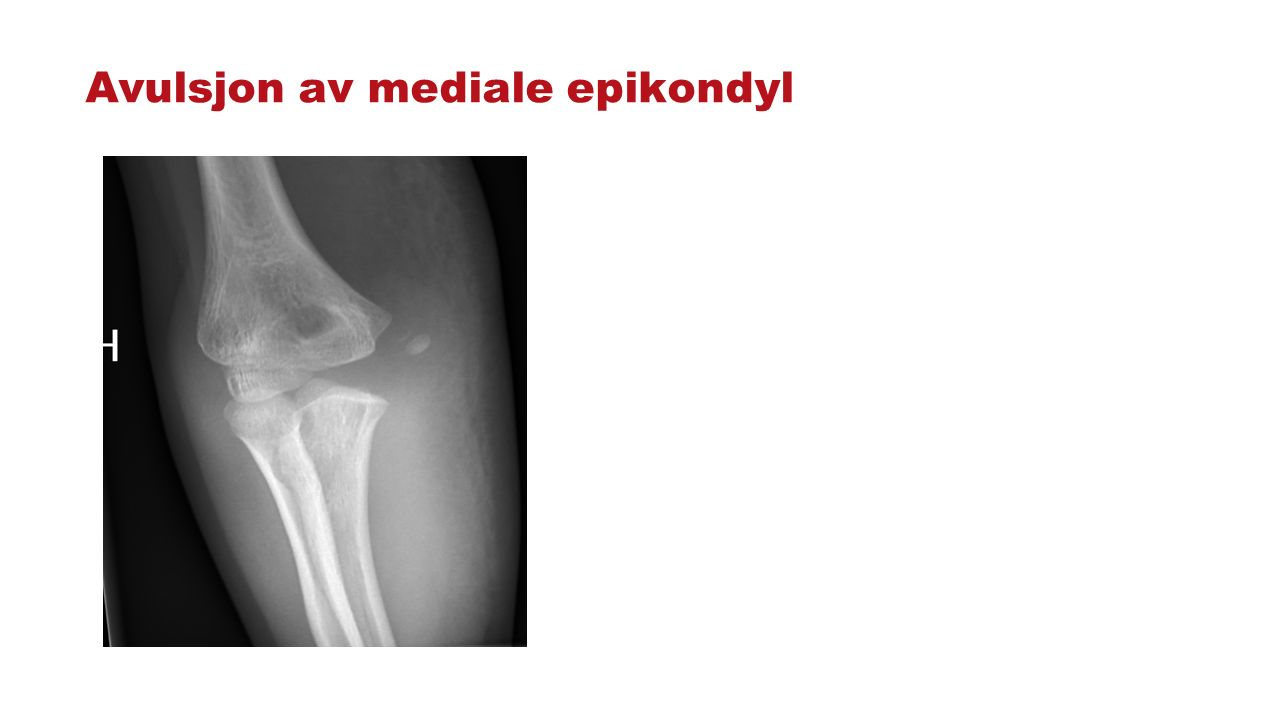 Avulsjon av mediale epikondyl