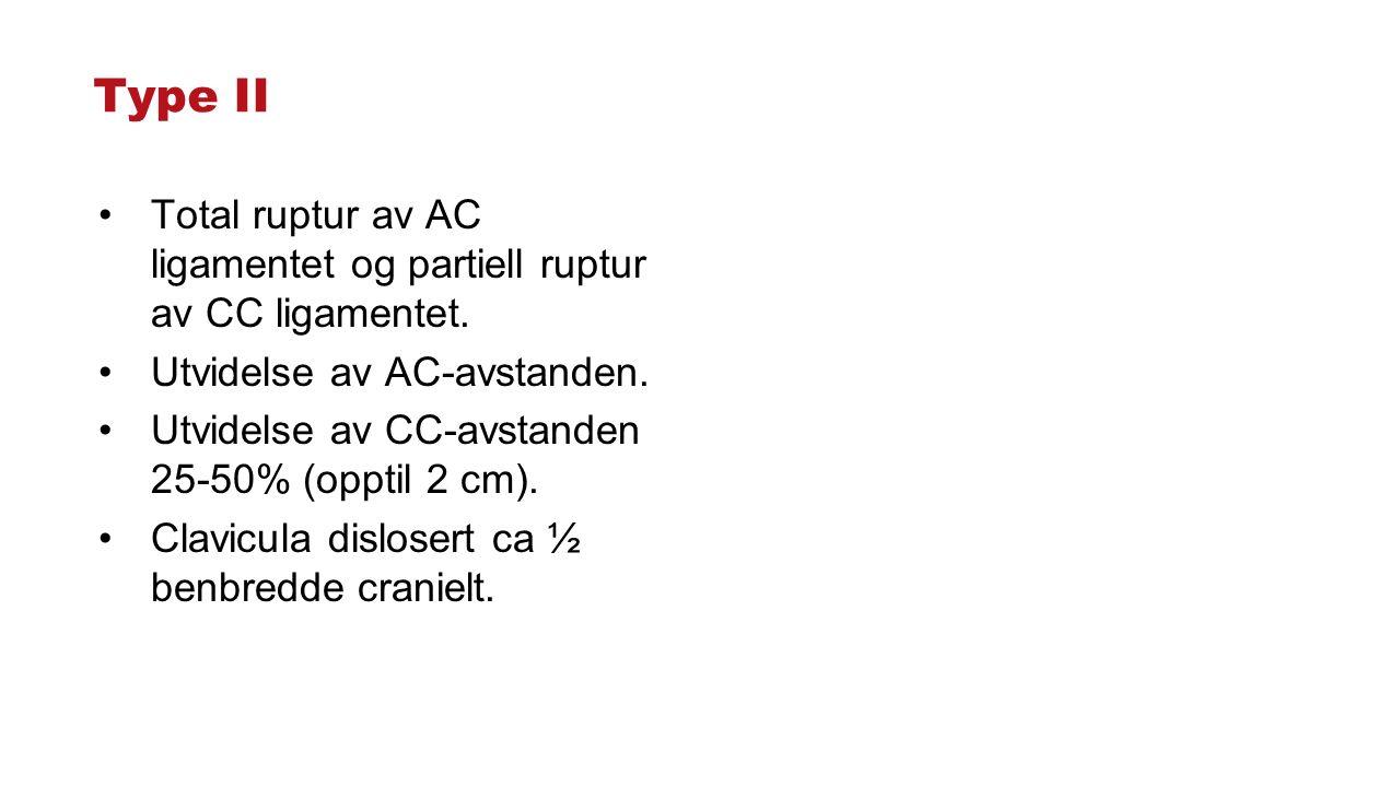 Type II Total ruptur av AC ligamentet og partiell ruptur av CC ligamentet. Utvidelse av AC-avstanden. Utvidelse av CC-avstanden 25-50% (opptil 2 cm).