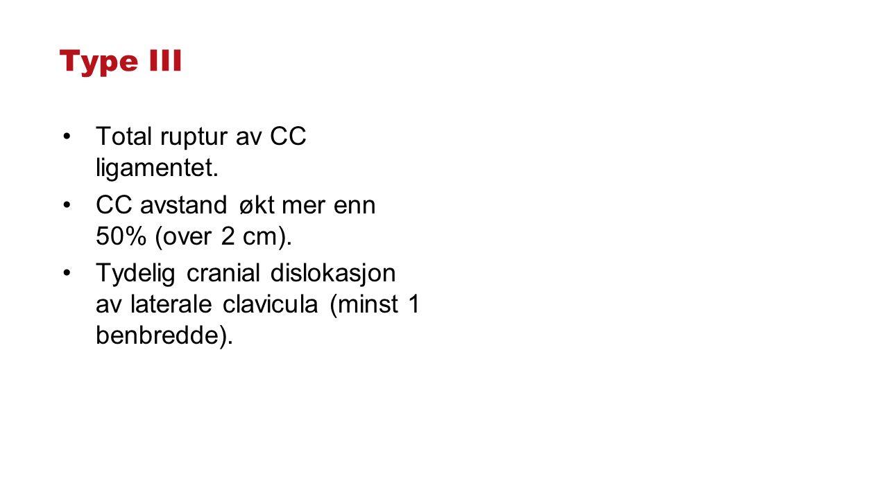 Type III Total ruptur av CC ligamentet. CC avstand økt mer enn 50% (over 2 cm). Tydelig cranial dislokasjon av laterale clavicula (minst 1 benbredde).