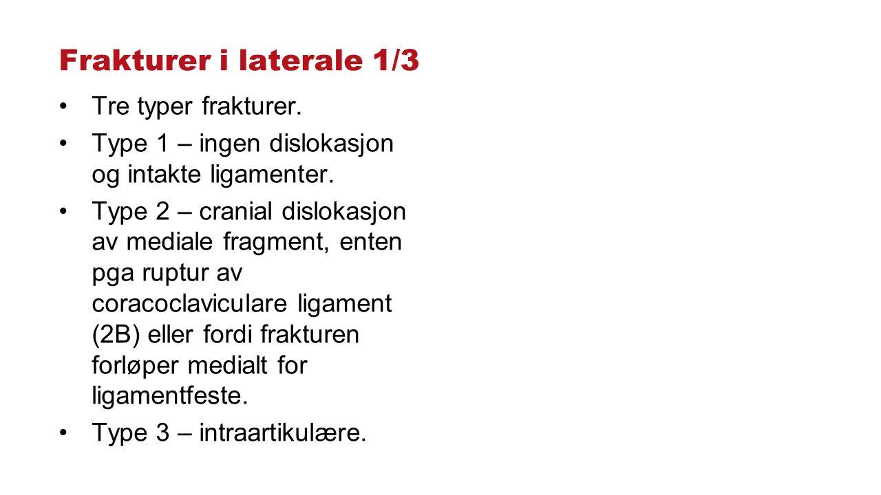 Frakturer i laterale 1/3 Tre typer frakturer. Type 1 – ingen dislokasjon og intakte ligamenter. Type 2 – cranial dislokasjon av mediale fragment, ente