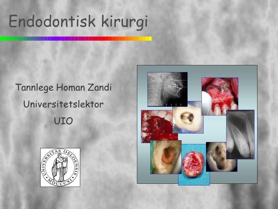 Endodontisk kirurgi Tannlege Homan Zandi Universitetslektor UIO