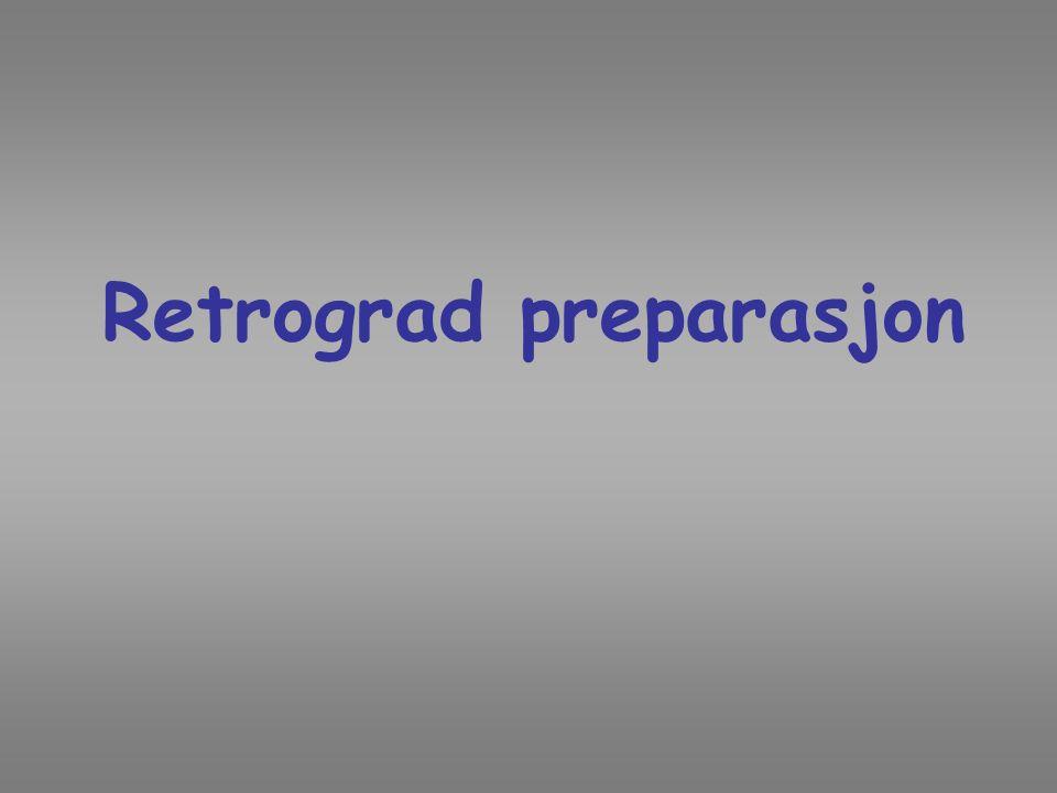 Retrograd preparasjon