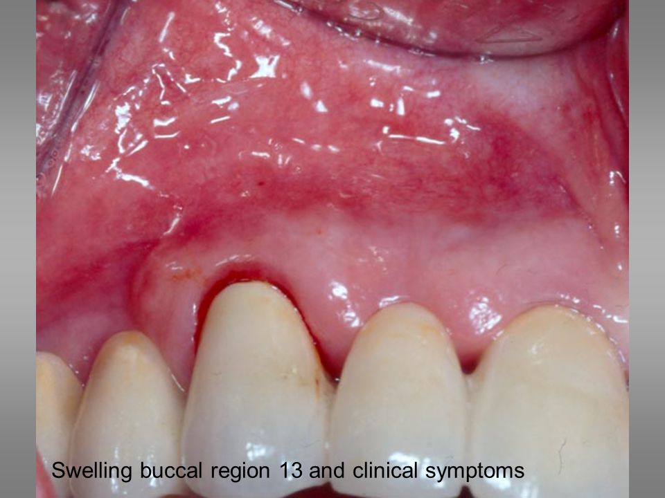 Swelling buccal region 13 and clinical symptoms