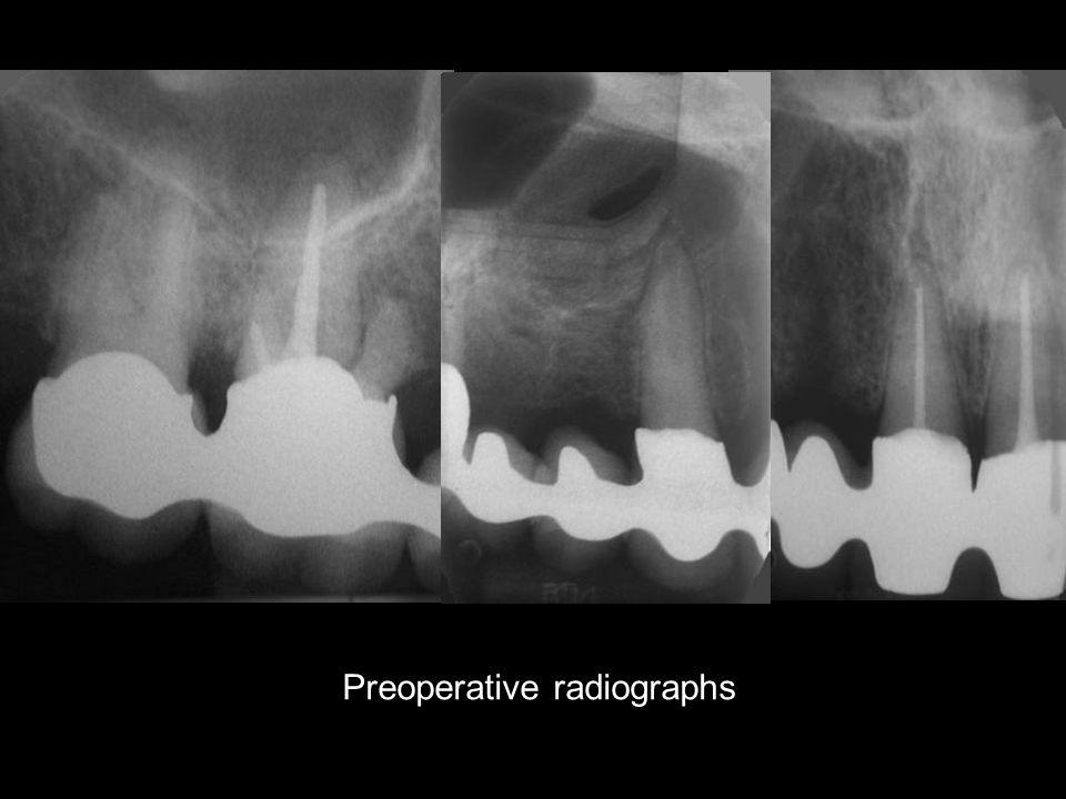 Preoperative radiographs