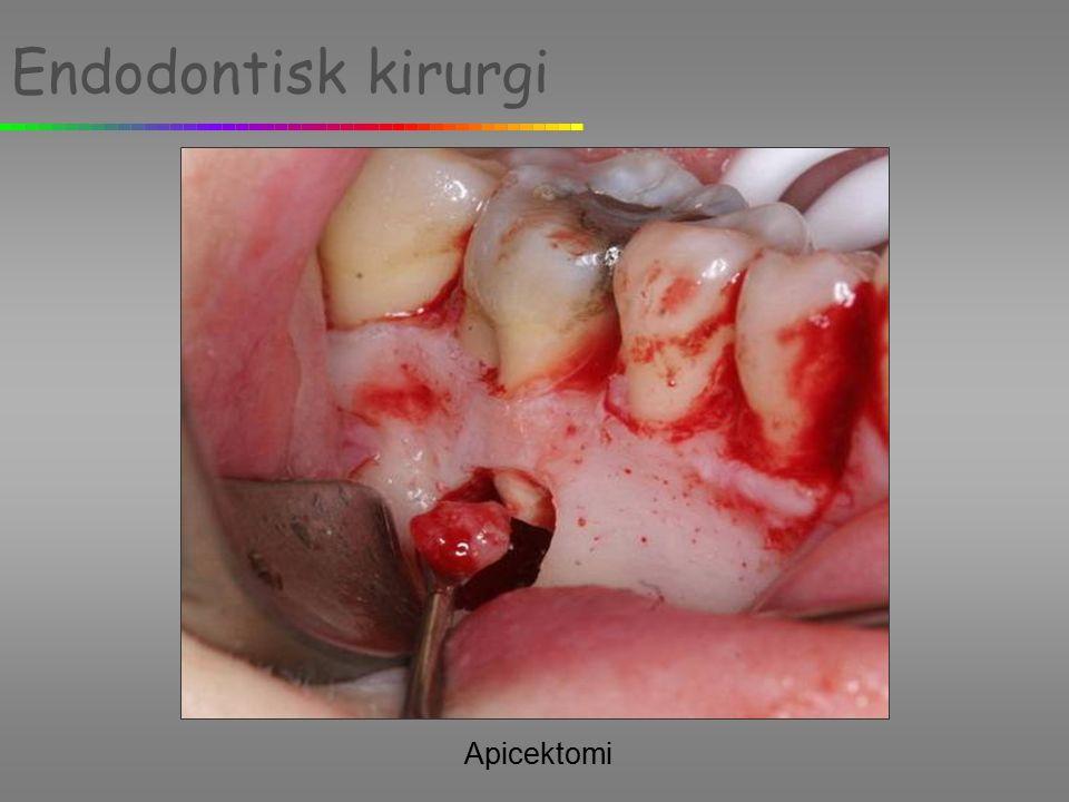 Endodontisk kirurgi Apicektomi