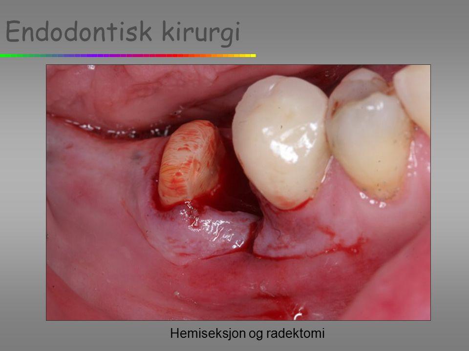 Endodontisk kirurgi Hemiseksjon og radektomi