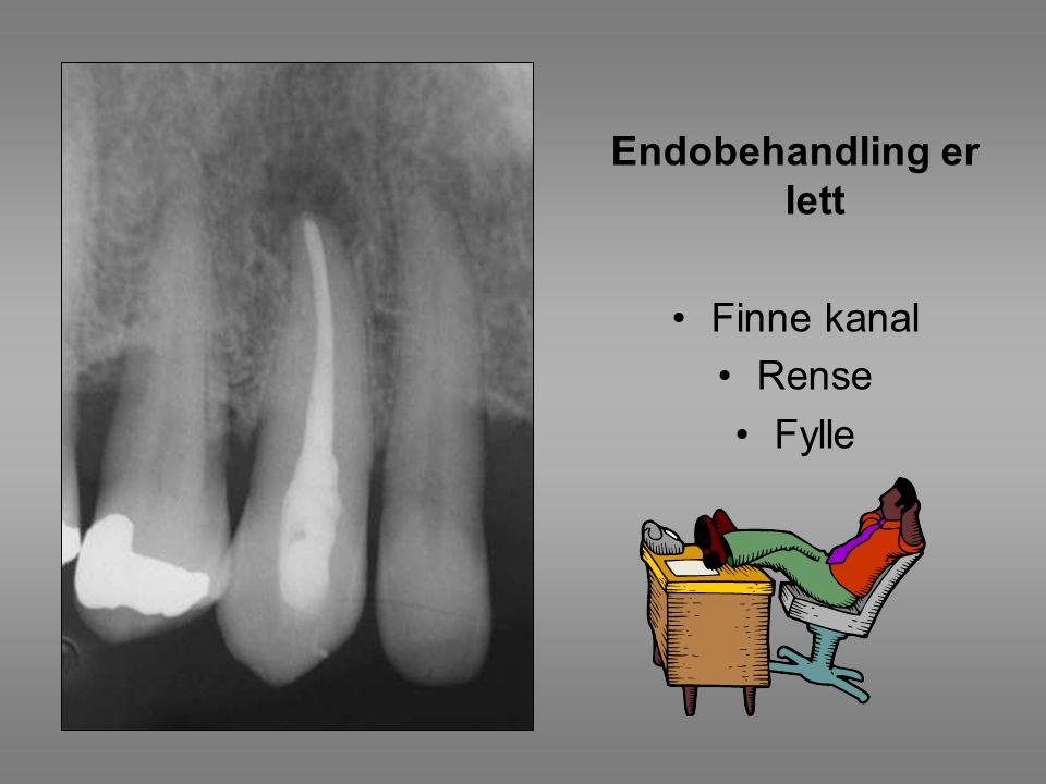 Endodontisk kirurgi Eksplorativ oppklapning
