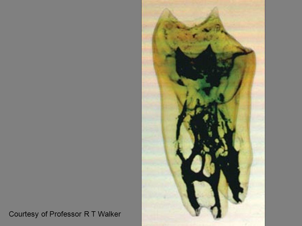 Case 8 Calcium Hydroxide extrusion in the sinus cavity