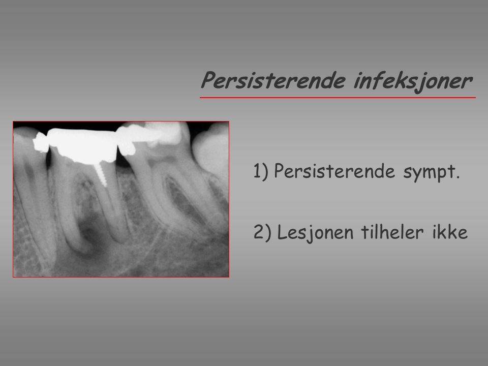 Deep periodontal pocket