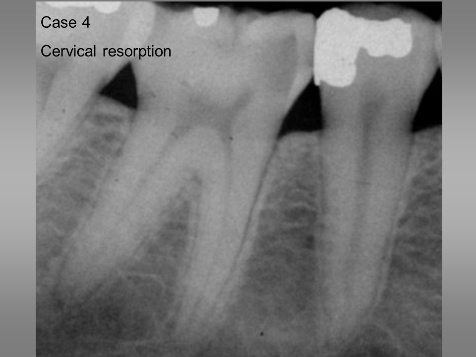 Utvikling av cervikal resorpsjon i tann 46. Case 4 Cervical resorption