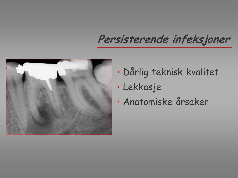 Periapical cysts can also become infected Nair Courtesy Nair