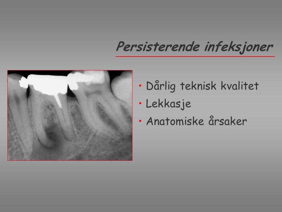 Dårlig teknisk kvalitet Lekkasje Anatomiske årsaker Persisterende infeksjoner