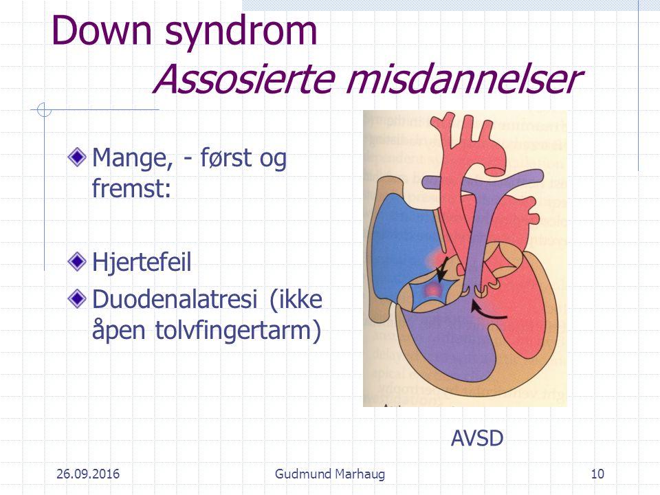 26.09.2016Gudmund Marhaug10 Down syndrom Assosierte misdannelser Mange, - først og fremst: Hjertefeil Duodenalatresi (ikke åpen tolvfingertarm) AVSD