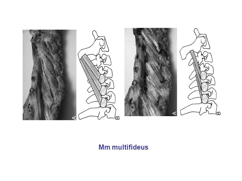 Mm multifideus