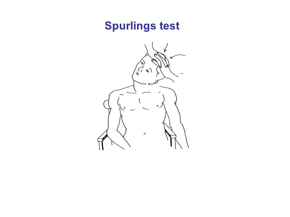 Spurlings test