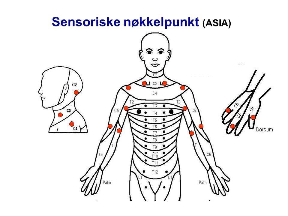 Sensoriske nøkkelpunkt (ASIA) C2