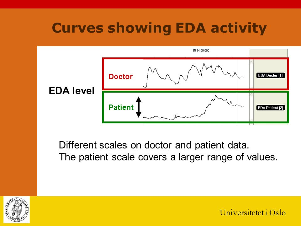 Universitetet i Oslo Curves showing EDA activity Patient Doctor EDA level Different scales on doctor and patient data.