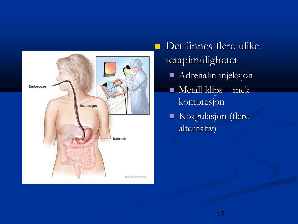 12 Det finnes flere ulike terapimuligheter Det finnes flere ulike terapimuligheter Adrenalin injeksjon Adrenalin injeksjon Metall klips – mek kompresjon Metall klips – mek kompresjon Koagulasjon (flere alternativ) Koagulasjon (flere alternativ)