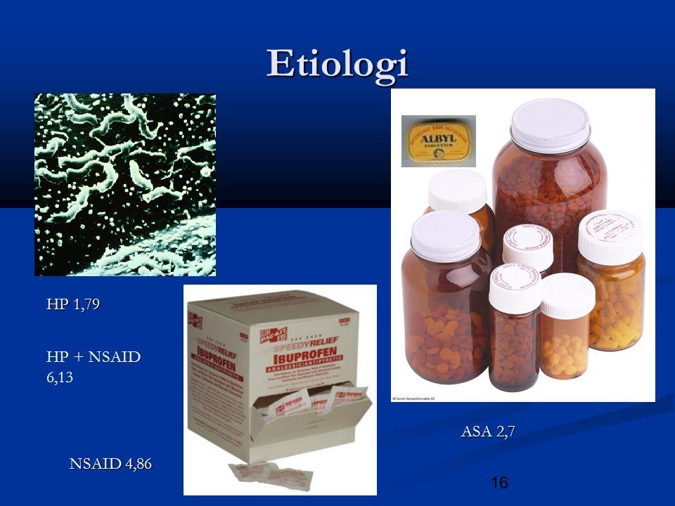 16 Etiologi HP 1,79 ASA 2,7 NSAID 4,86 HP + NSAID 6,13