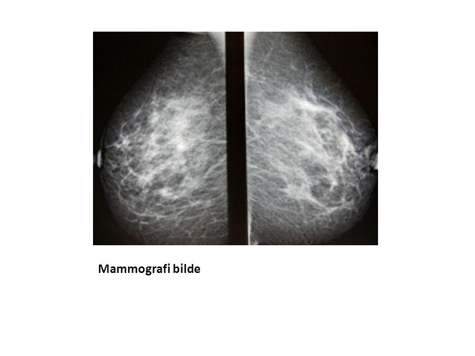 Mammografi bilde
