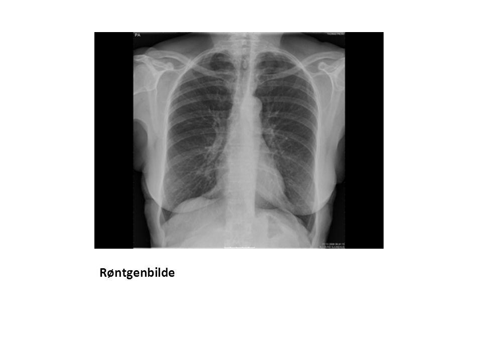 Pet/ct En kombinasjon av PET- og CT-skannere (positron- emisjonstomografi/computertomografi).