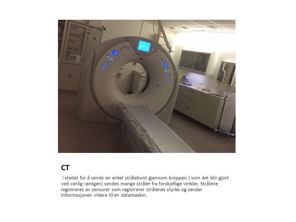 CT I stedet for å sende en enkel strålebunt gjennom kroppen ( som det blir gjort ved vanlig røntgen) sendes mange stråler fra forskjellige vinkler.