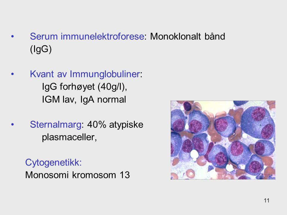 Serum immunelektroforese: Monoklonalt bånd (IgG) Kvant av Immunglobuliner: IgG forhøyet (40g/l), IGM lav, IgA normal Sternalmarg: 40% atypiske plasmaceller, Cytogenetikk: Monosomi kromosom 13 11