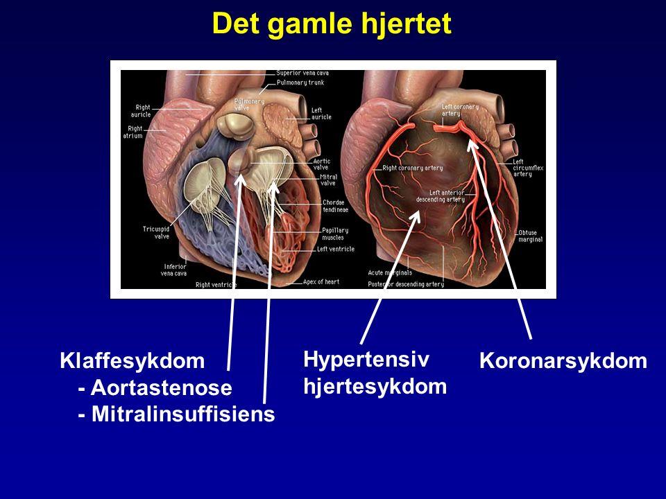 Det gamle hjertet Klaffesykdom - Aortastenose - Mitralinsuffisiens Hypertensiv hjertesykdom Koronarsykdom