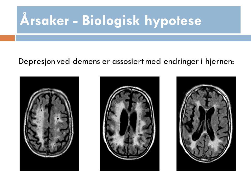 Årsaker - Biologisk hypotese Depresjon ved demens er assosiert med endringer i hjernen: