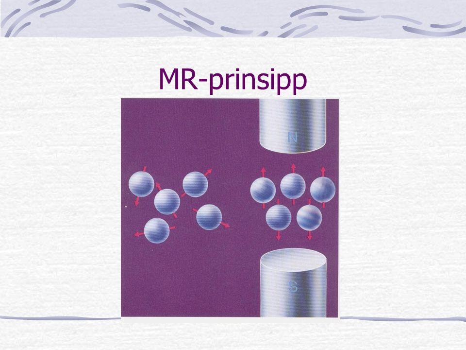 MR-prinsipp