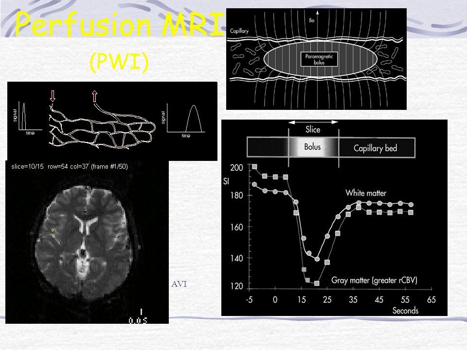Perfusion MRI (PWI) AVI