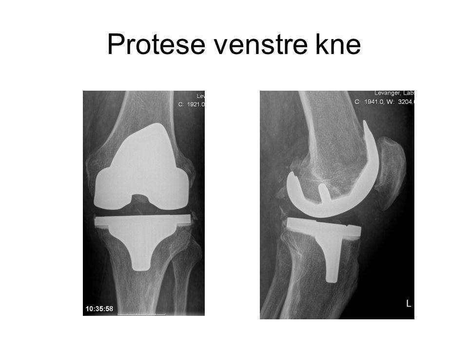 Protese venstre kne