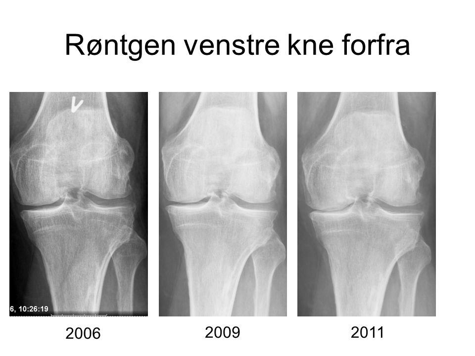 Røntgen venstre kne forfra 2006 20092011
