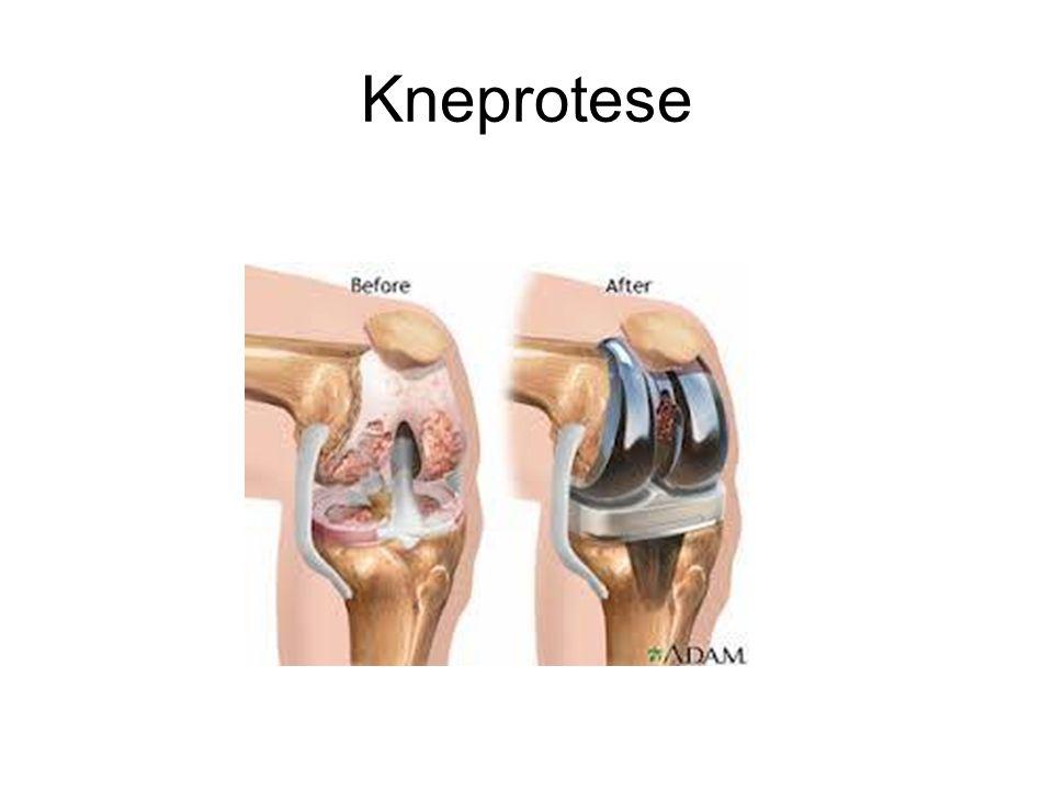Kneprotese
