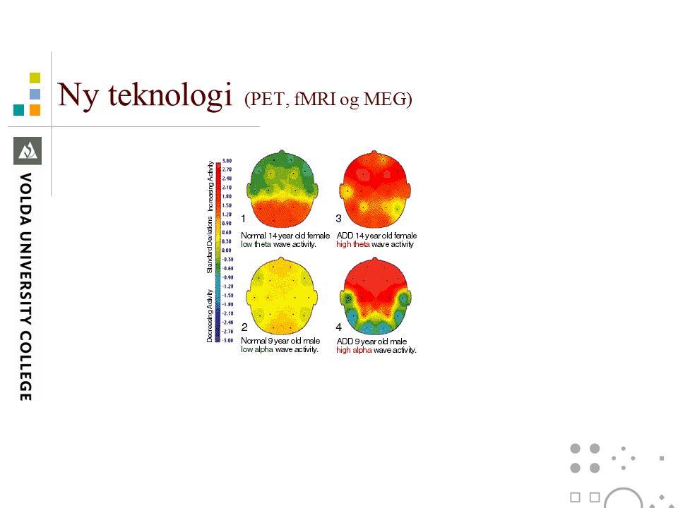Ny teknologi (PET, fMRI og MEG)