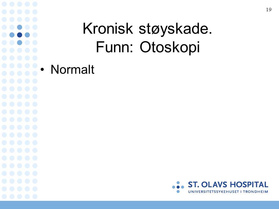 19 Kronisk støyskade. Funn: Otoskopi Normalt