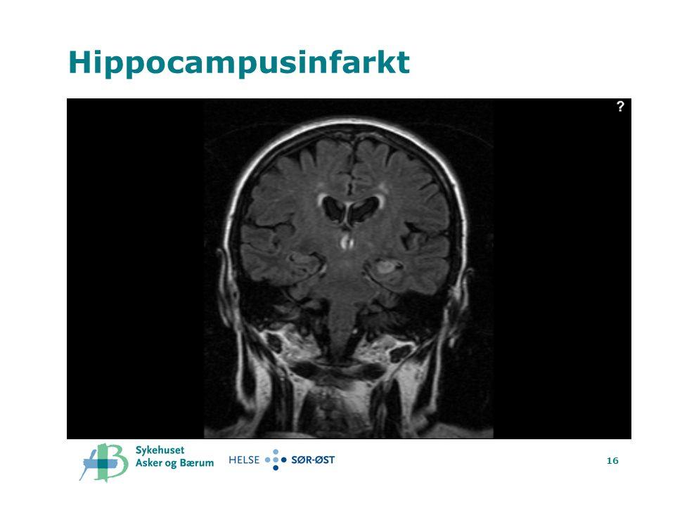16 Hippocampusinfarkt