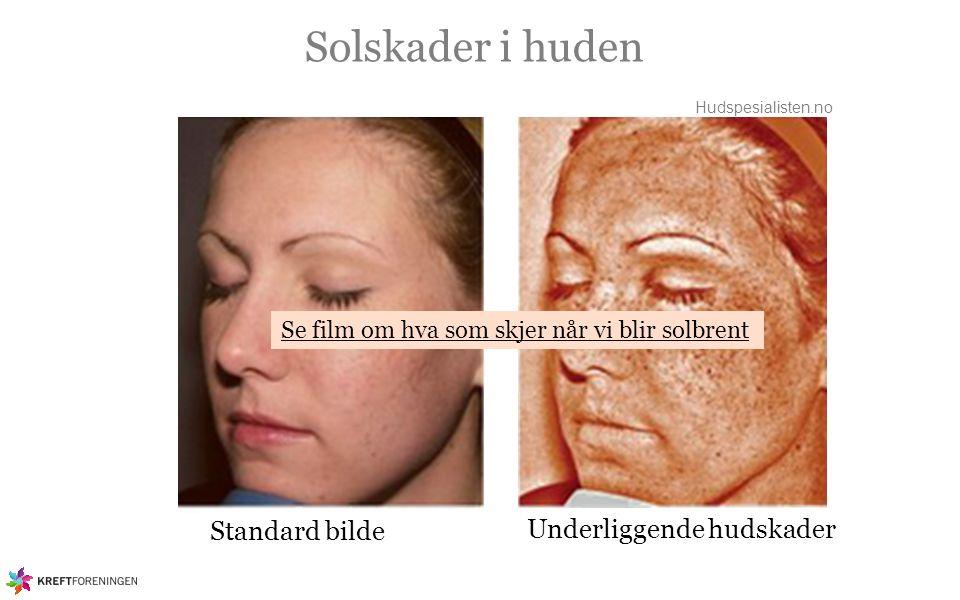 Solskader i huden Rynker Solvorter Sprengte blodkar Pigmentforandringer Tørrhet i huden, Økt antall sorte prikker Forstørrede talgkjertler