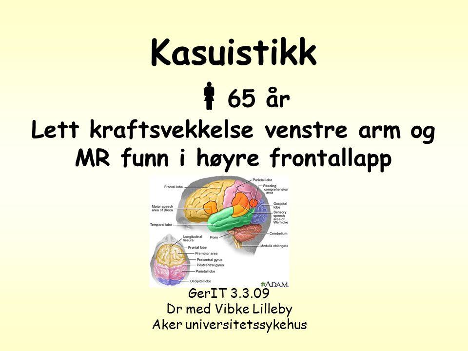 Kasuistikk  65 år Lett kraftsvekkelse venstre arm og MR funn i høyre frontallapp GerIT 3.3.09 Dr med Vibke Lilleby Aker universitetssykehus