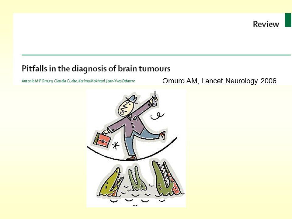 Omuro AM, Lancet Neurology 2006